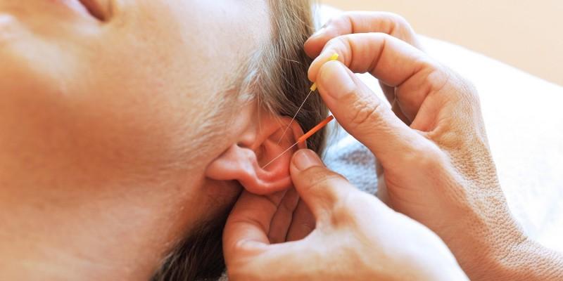 Akupunkturbehandlung am Ohr