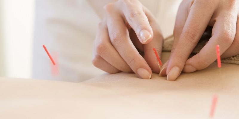 Akupunkturbehandlung im Liegen